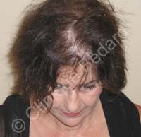 Microgreffe de cheveux femme avant - Clinique Bédard Montréal