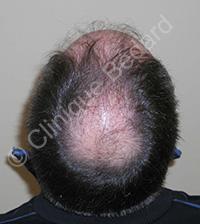 Microgreffe cheveux homme avant - Clinique Bédard Montréal