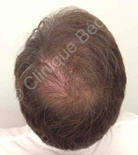 hair transplant man result after