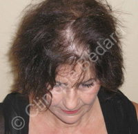hair transplant woman before