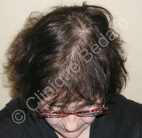 hair transplant woman result after