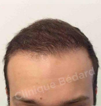 face Strip 1440 Grafts Technique after