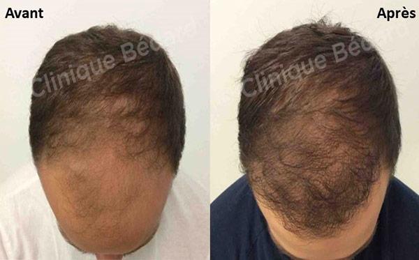 Clinique Bédard - Greffe de cheveux avant et apres